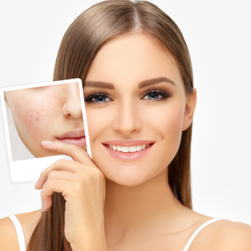 Facial Blemishes-Icon