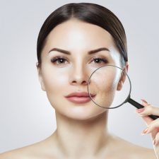 All You Need to Know About Kybella® Treatment